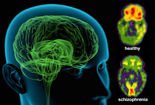 Schizophrenia-health